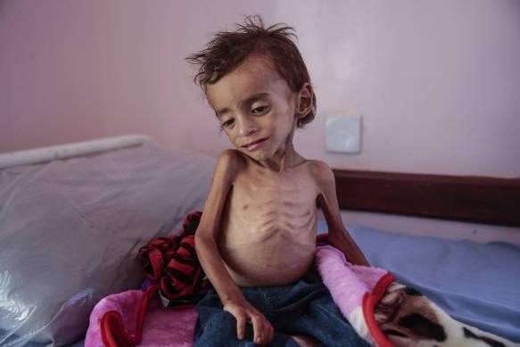 Mais de 85 mil crianças menores de cinco anos morreram de fome no Iêmen